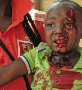 Even children have not been spared in Xenophobic South Africa